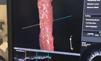 El General de Castelló implanta un 'stent' reabsorbible por primera vez en la Comunitat Valenciana