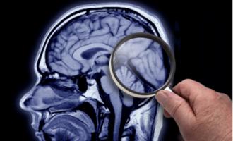 """Un estudio que """"mejora"""" el diagnóstico """"correcto"""" del Alzheimer marca cambios en el tratamiento del 44% de los pacientes"""