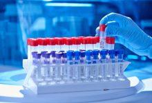 Sanitat registra 2.098 casos nous coronavirus i 1.244 altes